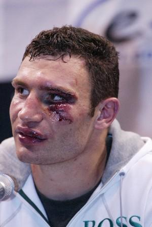 Secondsout Boxing News Clive Bernath Can Klitschko Vs