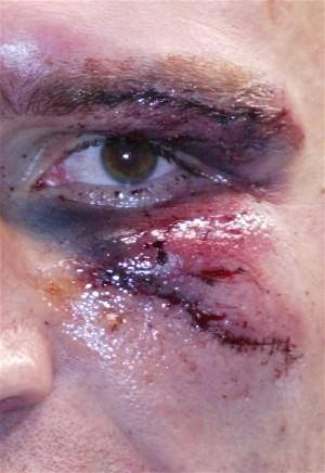 another boxing eye cut: HoganPhotos.com