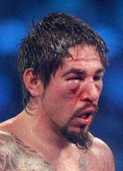 Margaritio Defeats Alvarez and Targets 'Canelo'