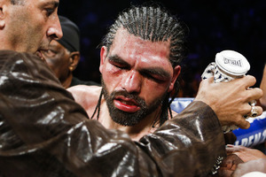 Angulo's left Eye is badly damaged