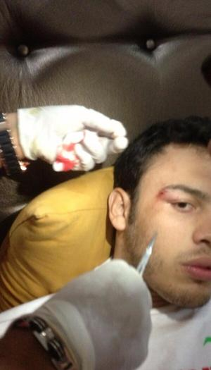 Chavez displays the cut that forced postponement