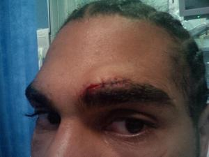 Haye displays cut sustained in sparring